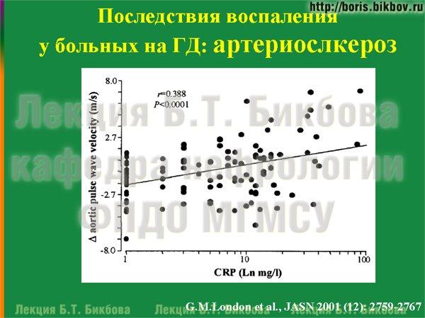 Последствия воспаления у больных на гемодиалзе: артериослкероз
