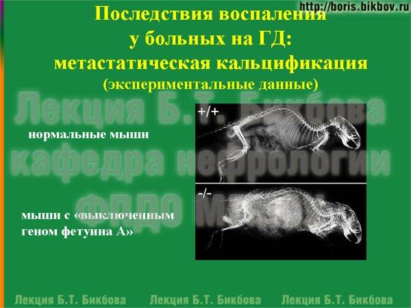 Последствия воспаления у больных на гемодиалзе: метастатическая кальцификация