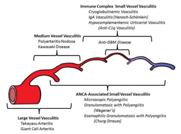 Пересмотр классификации васкулитов и васкулопатий