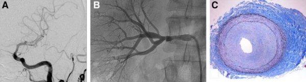 Фибромускулярная дисплазия - диагностика и лечение