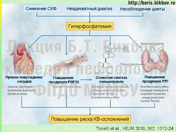 Последствия высокого уровня фосфатов крови при ХБП - вторичный гиперпаратиреоз, внекостная кальцификация, подавление синтеза кальцитриола, увеличение риска кардиоваскулярных осложнений