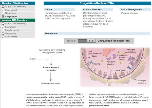 Тромботическая микроангиопатия