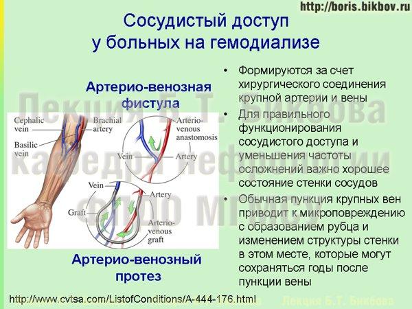 Сосудистый доступ на гемодиализе - артерио-венозная фистула и артерио-венозный сосудистый протез