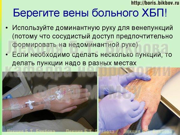 Варикозное заболевание вен нижних конечностей лечение